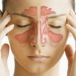 Синусит: симптомы, причины, лечение синусита.